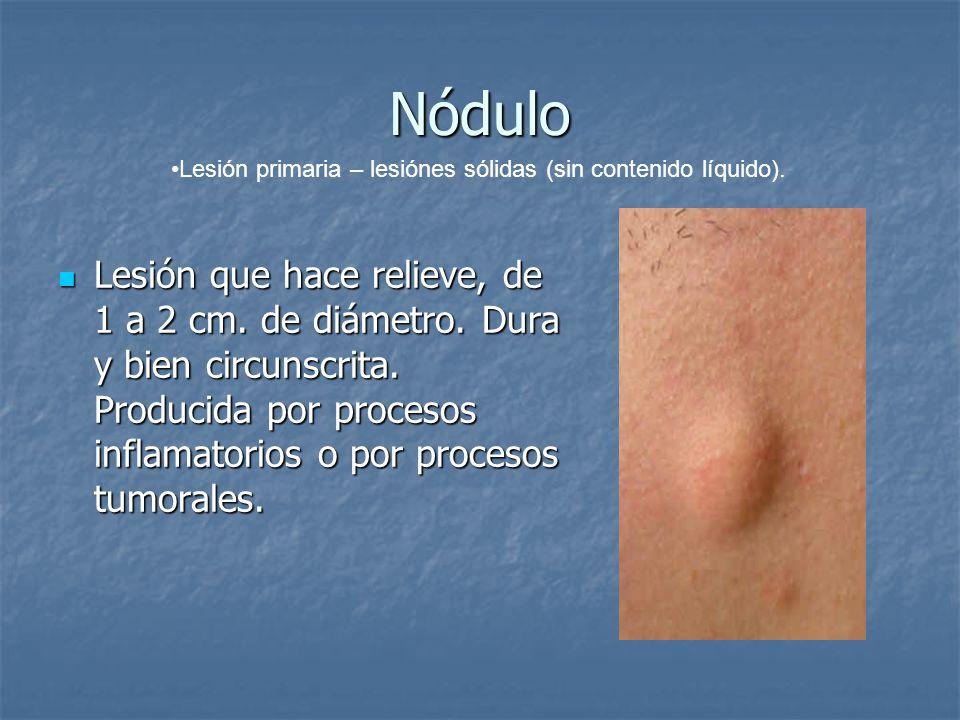 Nódulo Lesión primaria – lesiónes sólidas (sin contenido líquido).