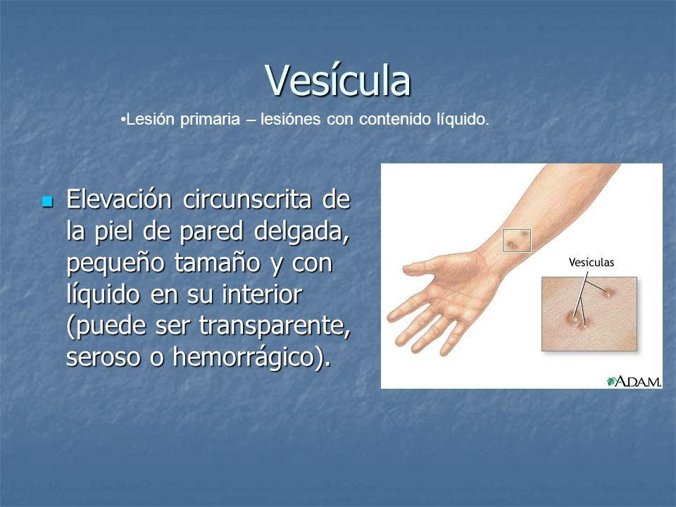 Vesícula Lesión primaria – lesiónes con contenido líquido.