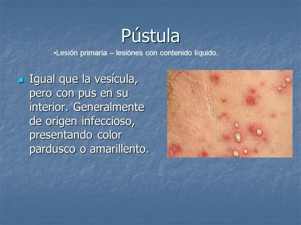 Pústula Lesión primaria – lesiónes con contenido líquido.