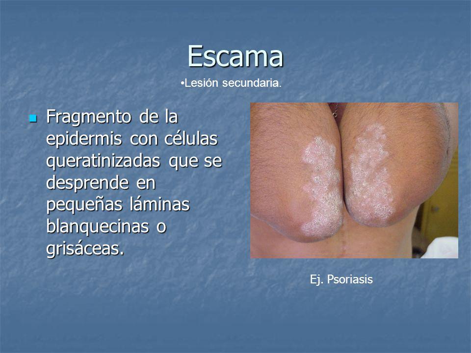 Escama Lesión secundaria. Fragmento de la epidermis con células queratinizadas que se desprende en pequeñas láminas blanquecinas o grisáceas.