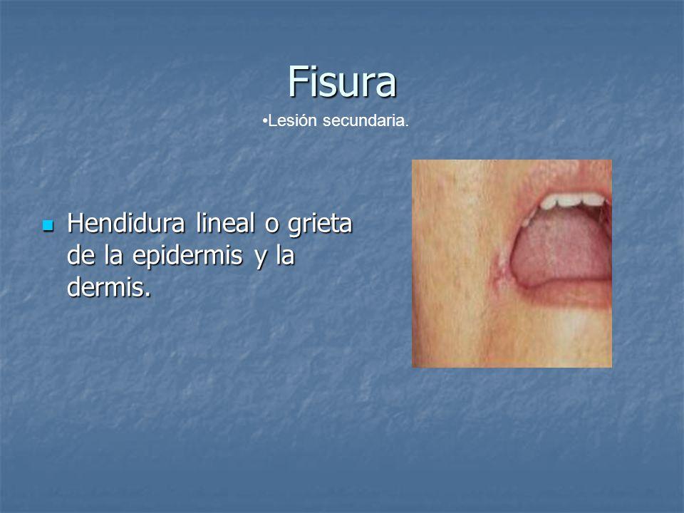 Fisura Hendidura lineal o grieta de la epidermis y la dermis.
