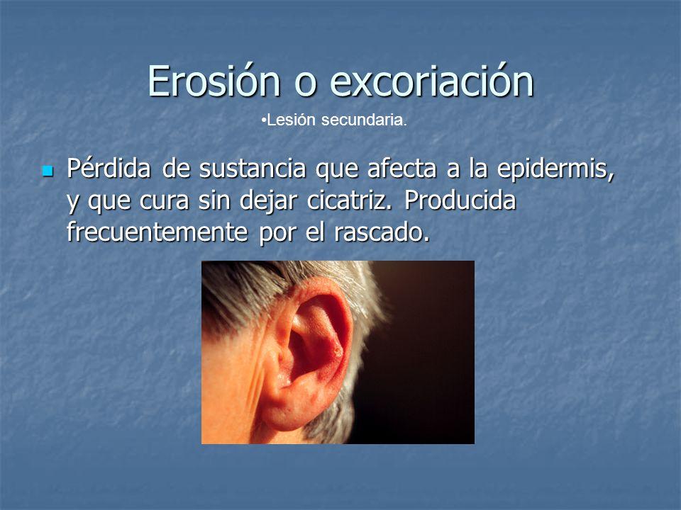 Erosión o excoriación Lesión secundaria.
