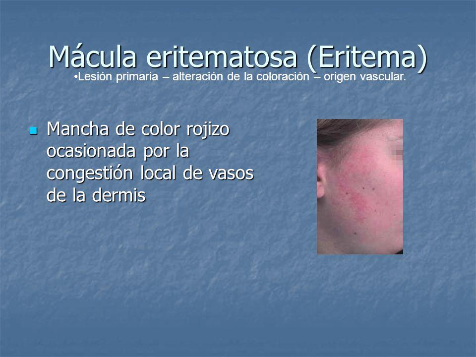 Mácula eritematosa (Eritema)