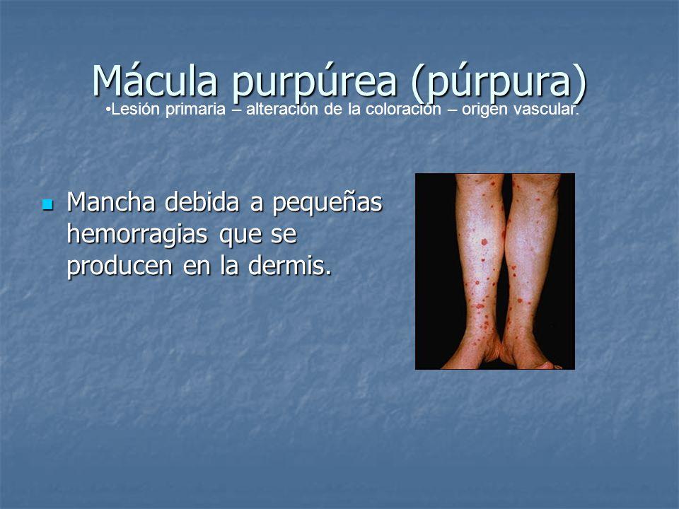 Mácula purpúrea (púrpura)