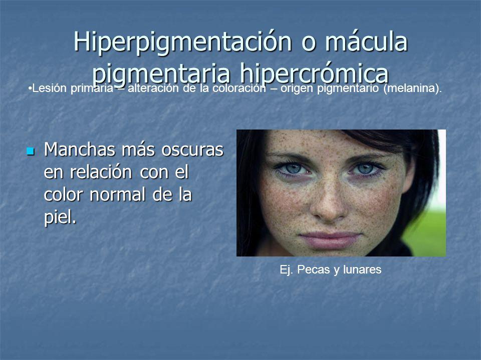 Hiperpigmentación o mácula pigmentaria hipercrómica