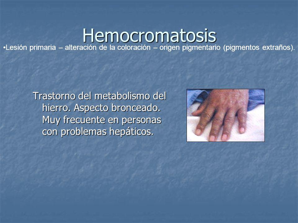 Hemocromatosis Lesión primaria – alteración de la coloración – origen pigmentario (pigmentos extraños).