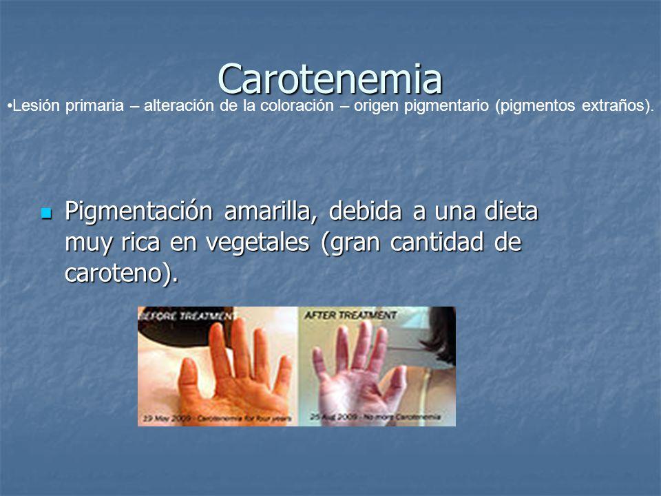 Carotenemia Lesión primaria – alteración de la coloración – origen pigmentario (pigmentos extraños).
