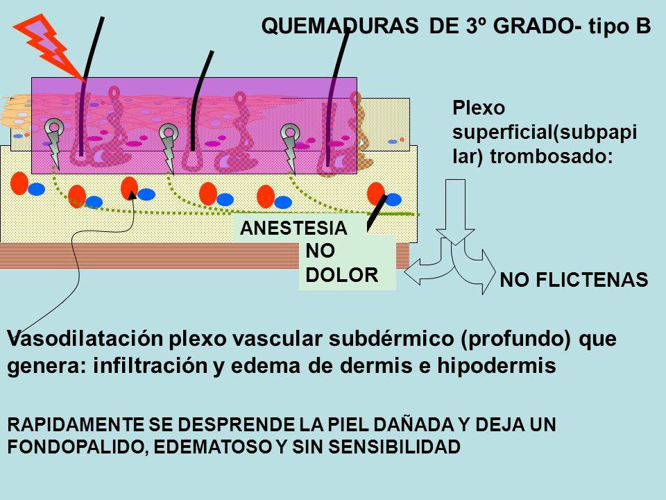 QUEMADURAS DE 3º GRADO- tipo B