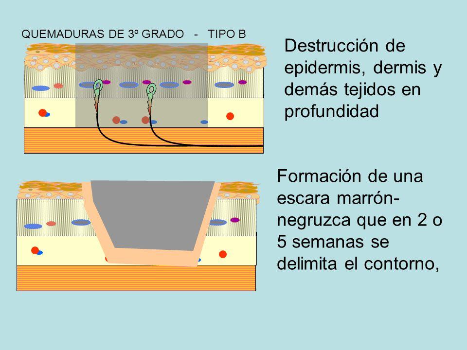Destrucción de epidermis, dermis y demás tejidos en profundidad