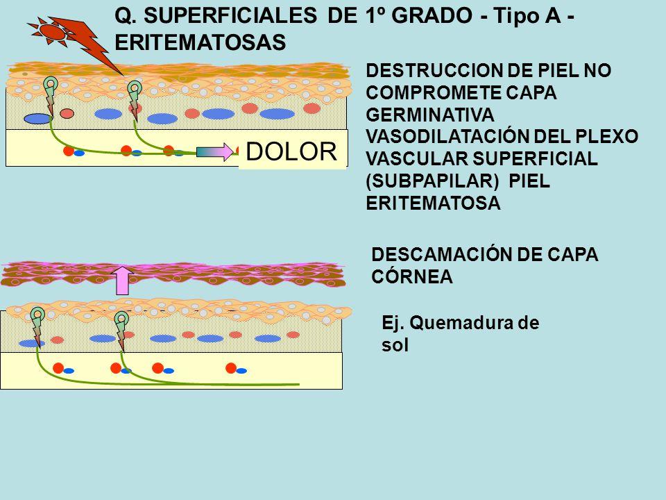 DOLOR Q. SUPERFICIALES DE 1º GRADO - Tipo A - ERITEMATOSAS