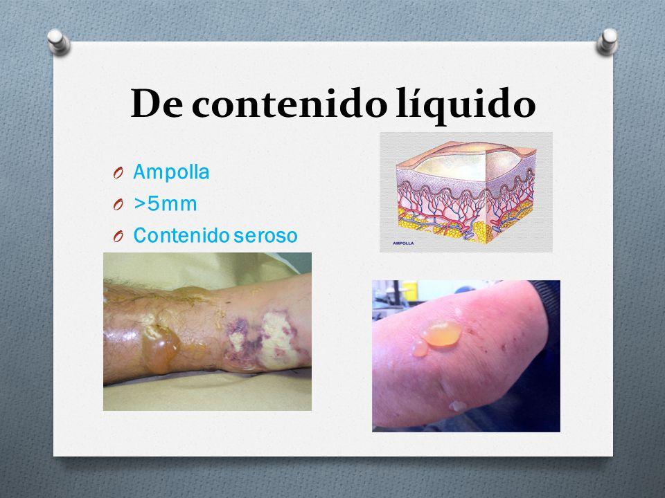 De contenido líquido Ampolla >5mm Contenido seroso Flácida – tensa