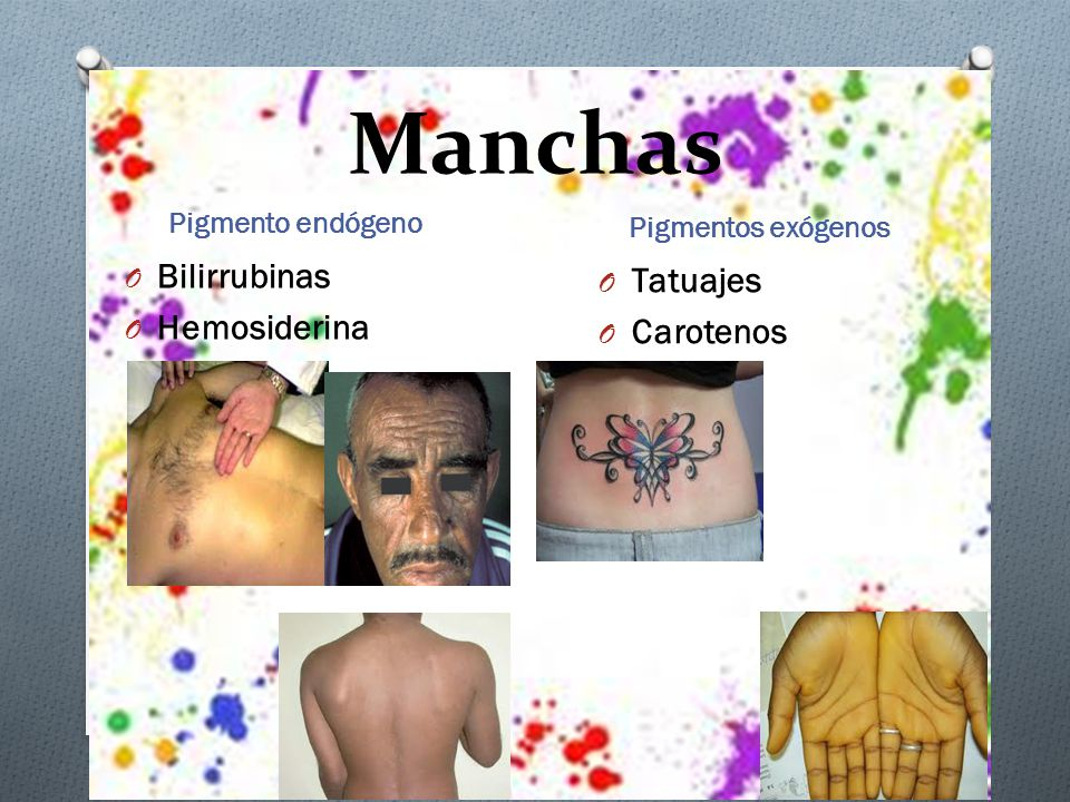 Manchas Bilirrubinas Tatuajes Hemosiderina Carotenos Pigmento endógeno