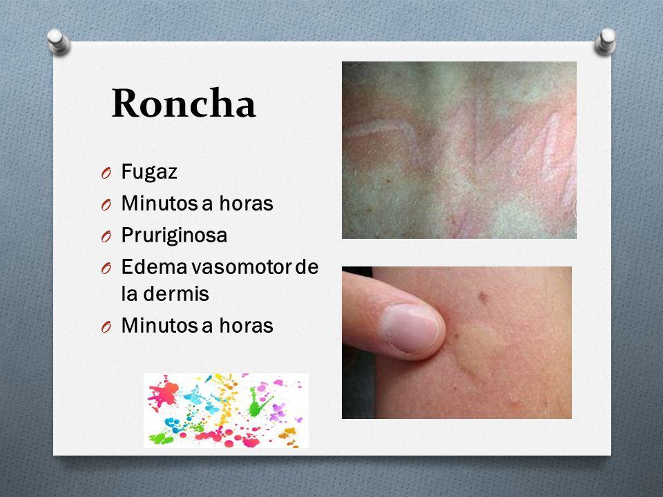 Roncha Fugaz Minutos a horas Pruriginosa Edema vasomotor de la dermis