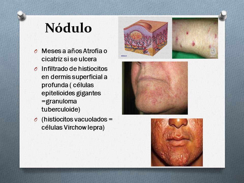 Nódulo Meses a años Atrofia o cicatriz si se ulcera