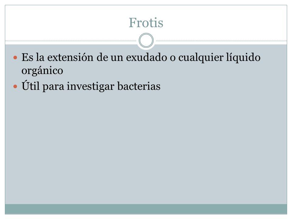 Frotis Es la extensión de un exudado o cualquier líquido orgánico