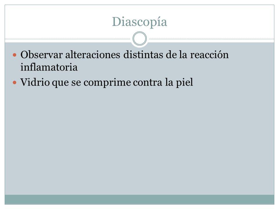 Diascopía Observar alteraciones distintas de la reacción inflamatoria