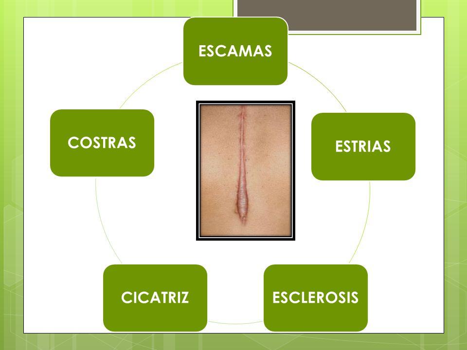 ESCAMAS ESTRIAS ESCLEROSIS CICATRIZ COSTRAS