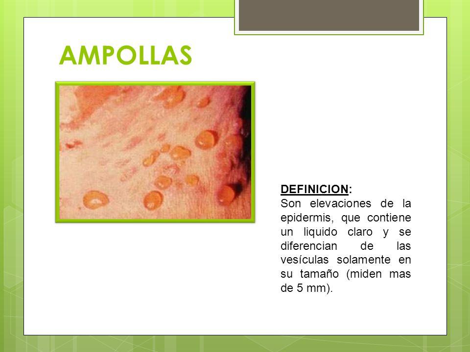 AMPOLLAS DEFINICION: