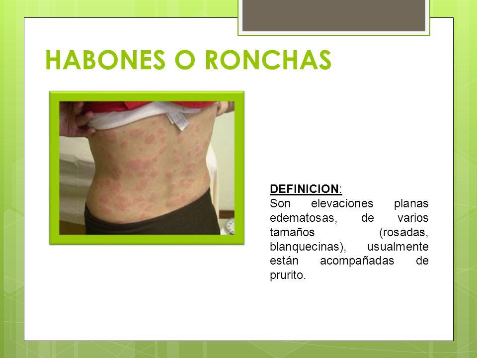 HABONES O RONCHAS DEFINICION: