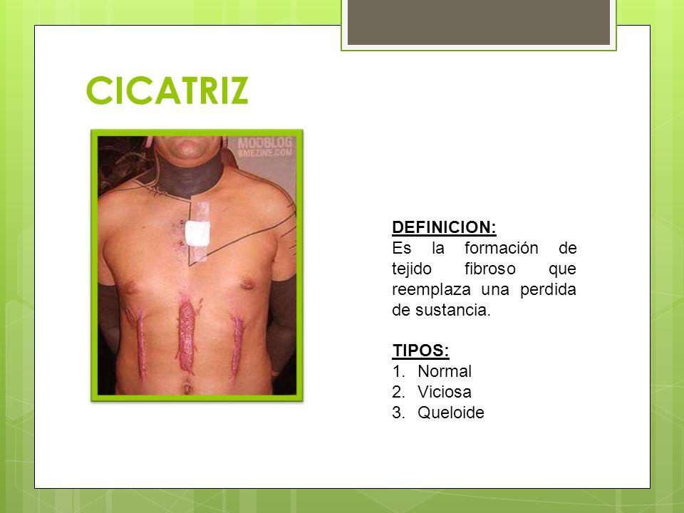 CICATRIZ DEFINICION: Es la formación de tejido fibroso que reemplaza una perdida de sustancia. TIPOS: