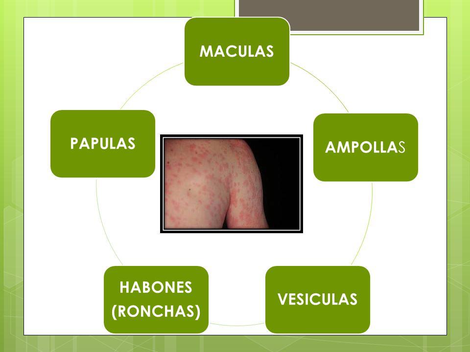 MACULAS AMPOLLAS VESICULAS HABONES (RONCHAS) PAPULAS