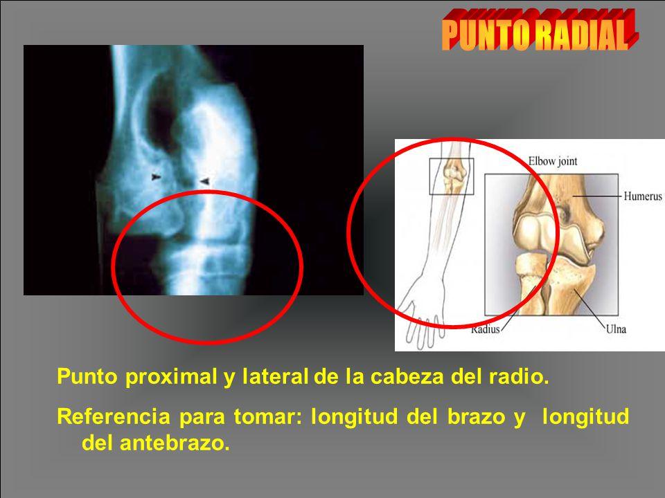 PUNTO RADIAL Punto proximal y lateral de la cabeza del radio.