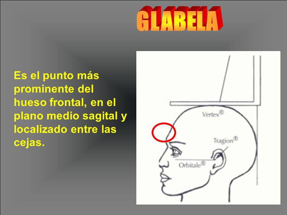 GLABELA Es el punto más prominente del hueso frontal, en el plano medio sagital y localizado entre las cejas.