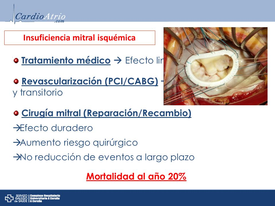 Insuficiencia mitral isquémica