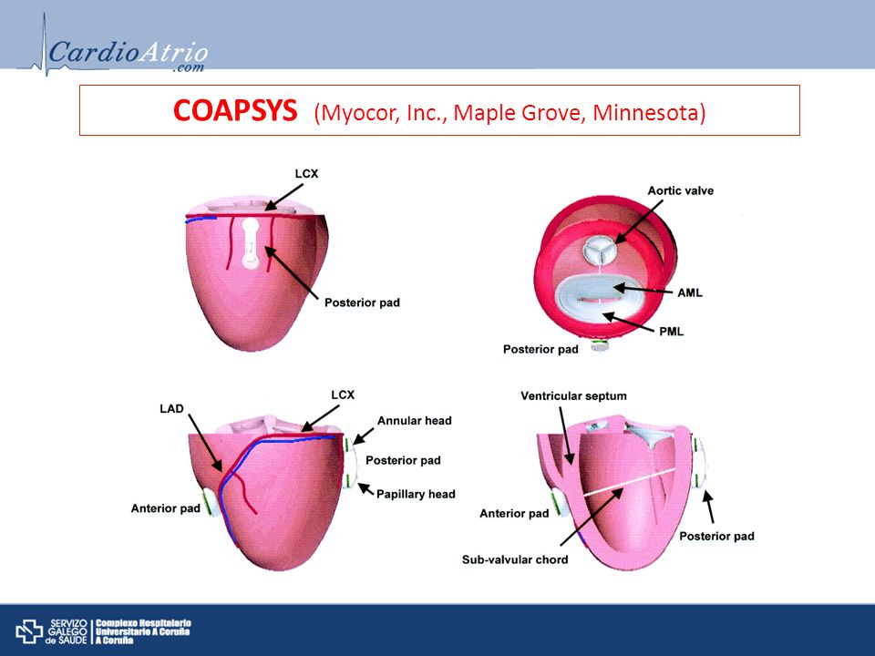 COAPSYS (Myocor, Inc., Maple Grove, Minnesota)