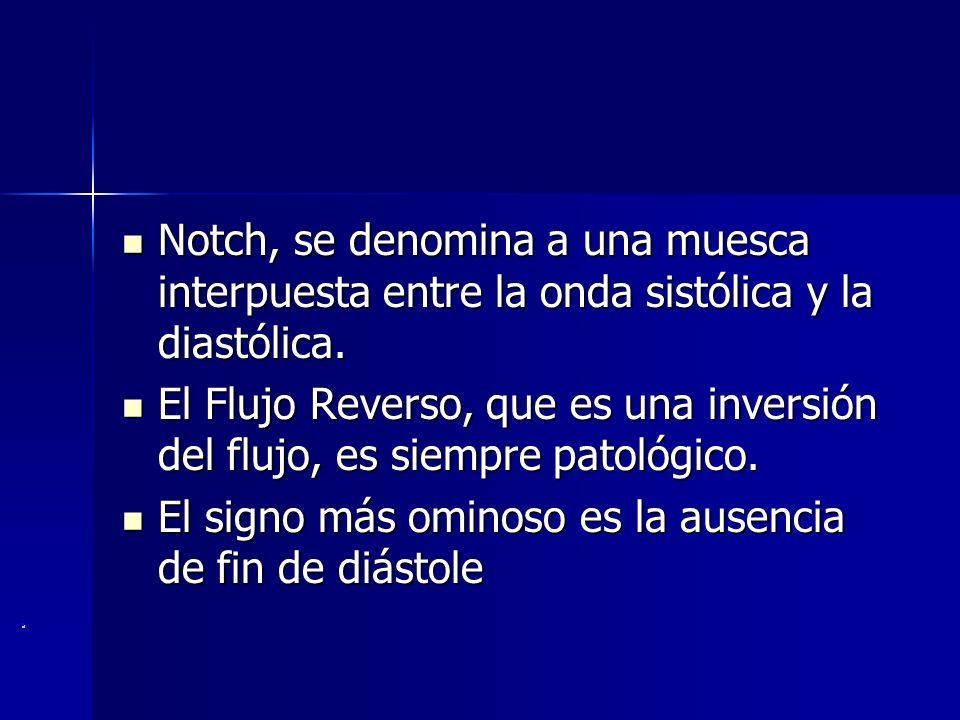 Notch, se denomina a una muesca interpuesta entre la onda sistólica y la diastólica.
