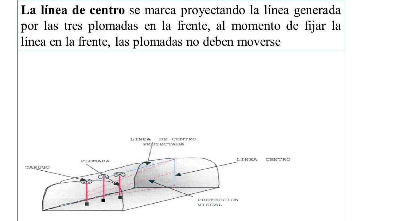 La línea de centro se marca proyectando la línea generada por las tres plomadas en la frente, al momento de fijar la línea en la frente, las plomadas no deben moverse