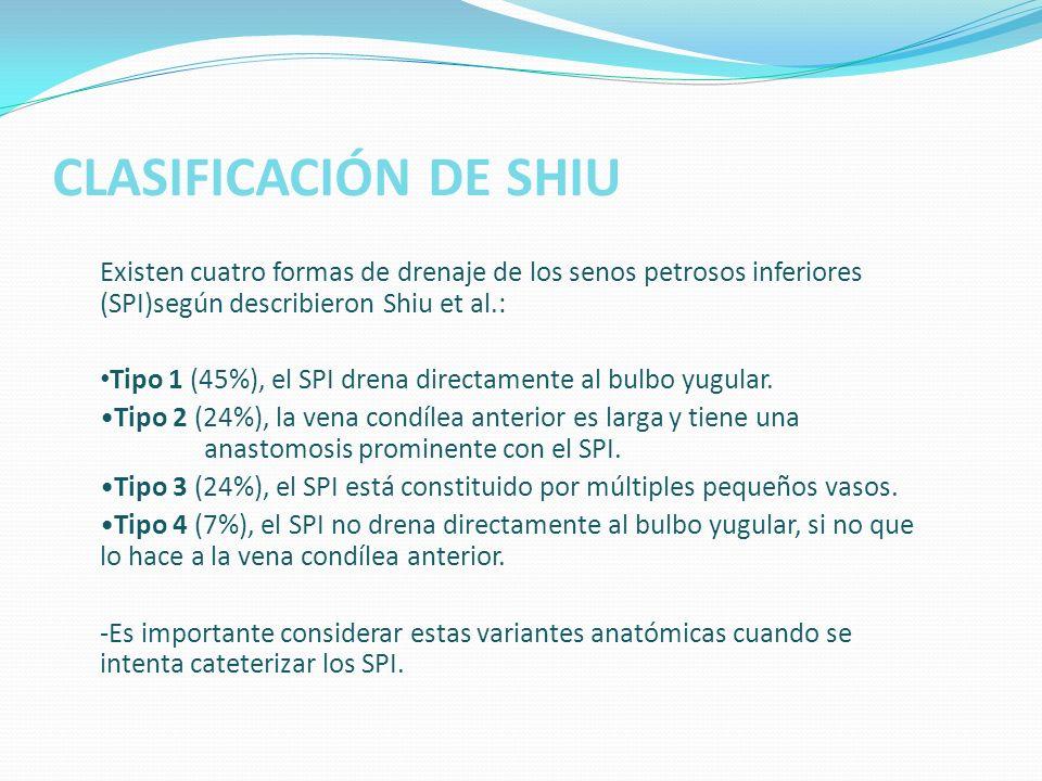 CLASIFICACIÓN DE SHIU Existen cuatro formas de drenaje de los senos petrosos inferiores (SPI)según describieron Shiu et al.: