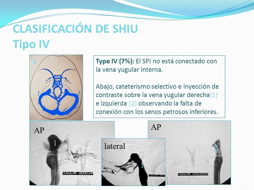 CLASIFICACIÓN DE SHIU Tipo IV