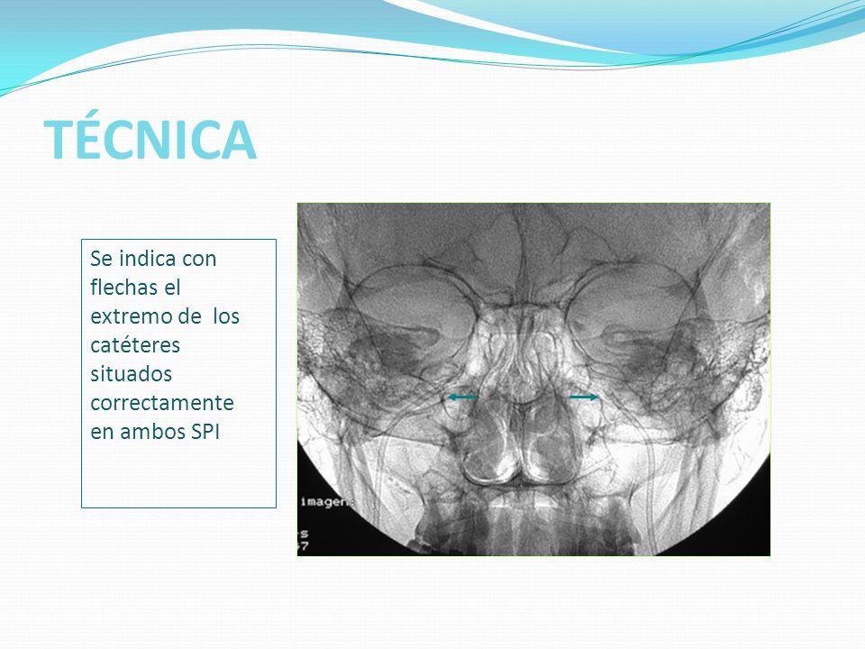 TÉCNICA Se indica con flechas el extremo de los catéteres situados correctamente en ambos SPI