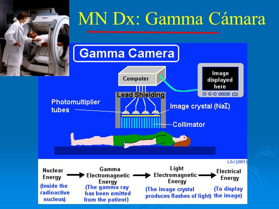 MN Dx: Gamma Cámara