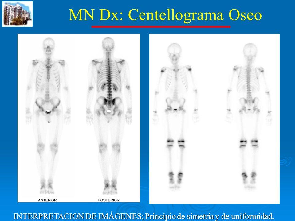 MN Dx: Centellograma Oseo