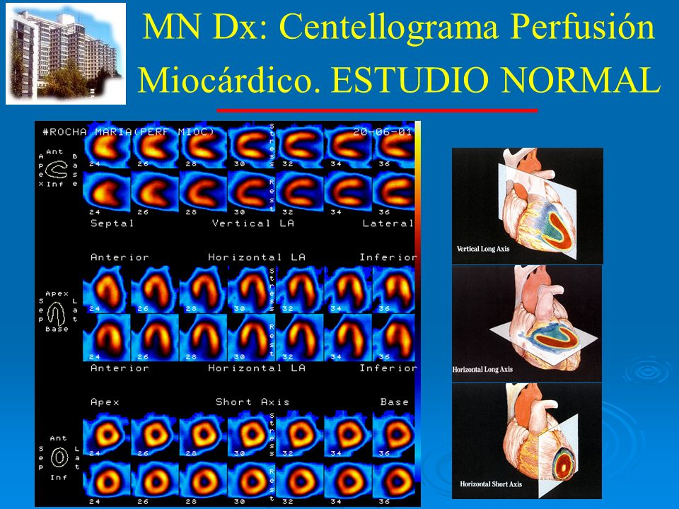 MN Dx: Centellograma Perfusión Miocárdico. ESTUDIO NORMAL