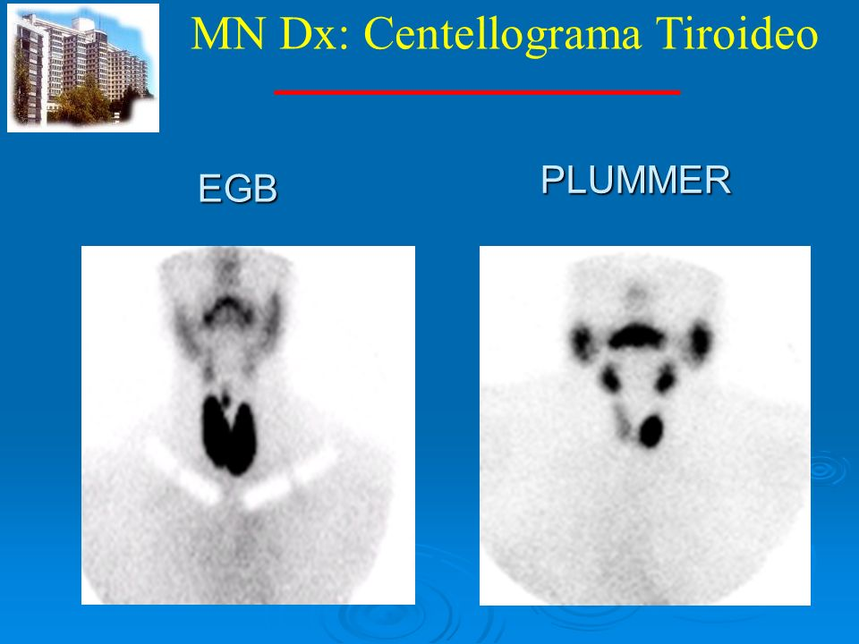 MN Dx: Centellograma Tiroideo