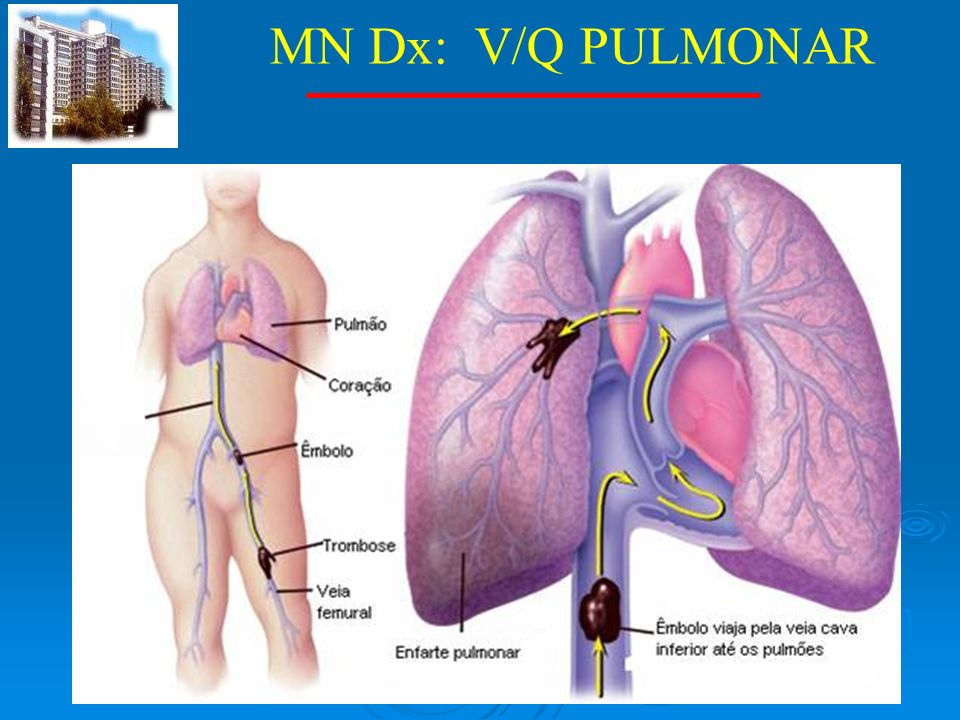 MN Dx: V/Q PULMONAR