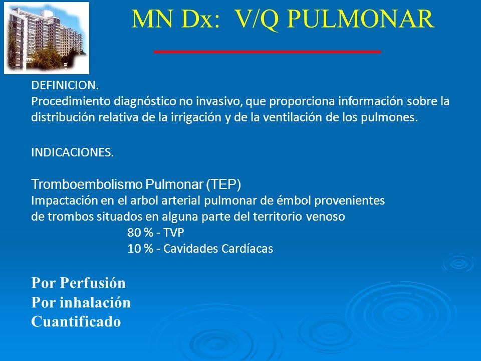 MN Dx: V/Q PULMONAR Por Perfusión Por inhalación Cuantificado