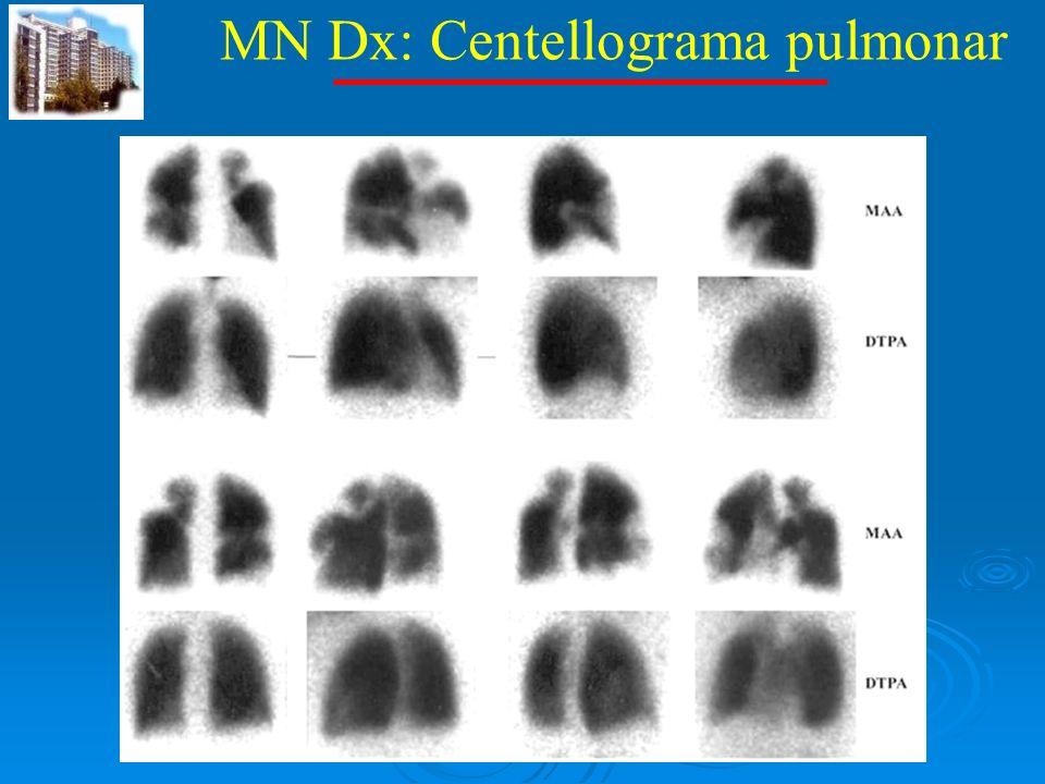 MN Dx: Centellograma pulmonar