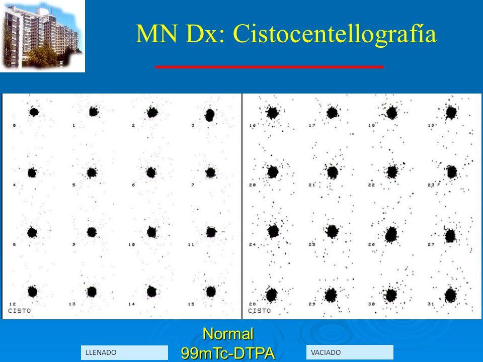 MN Dx: Cistocentellografía