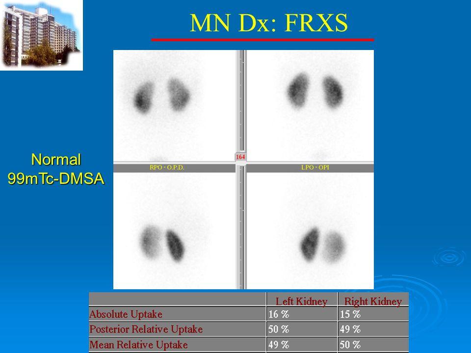 MN Dx: FRXS Normal 99mTc-DMSA