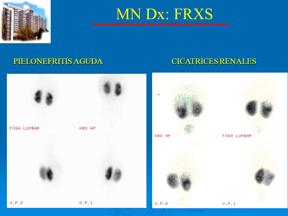 MN Dx: FRXS PIELONEFRITIS AGUDA CICATRICES RENALES