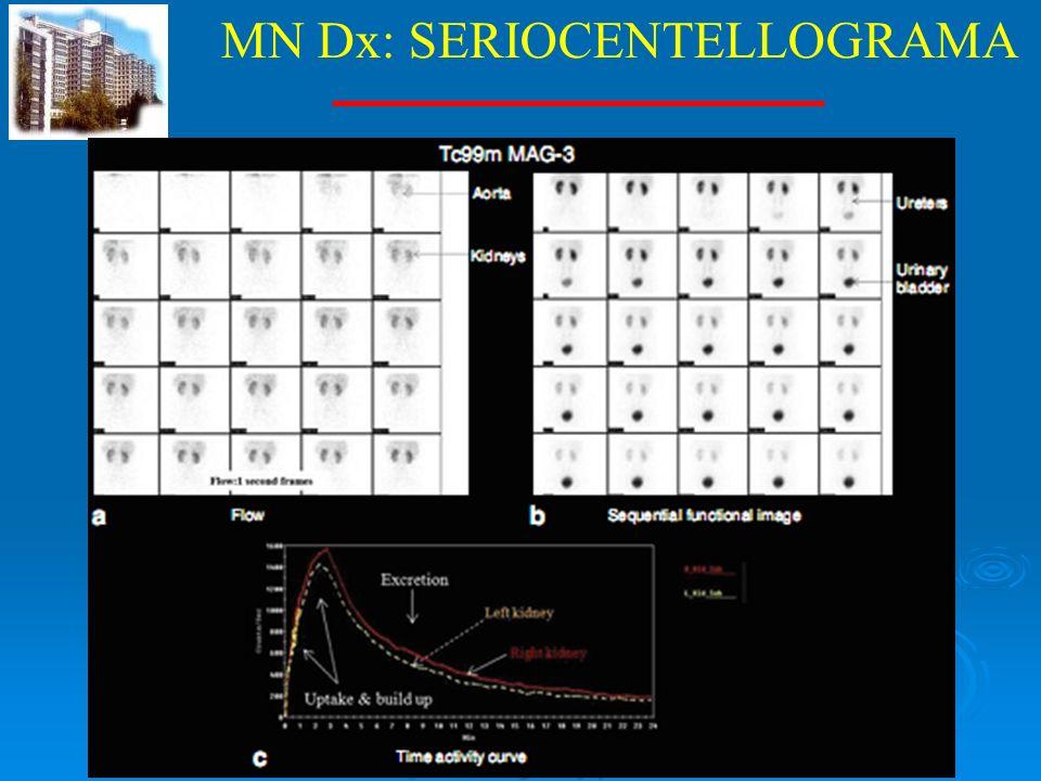 MN Dx: SERIOCENTELLOGRAMA