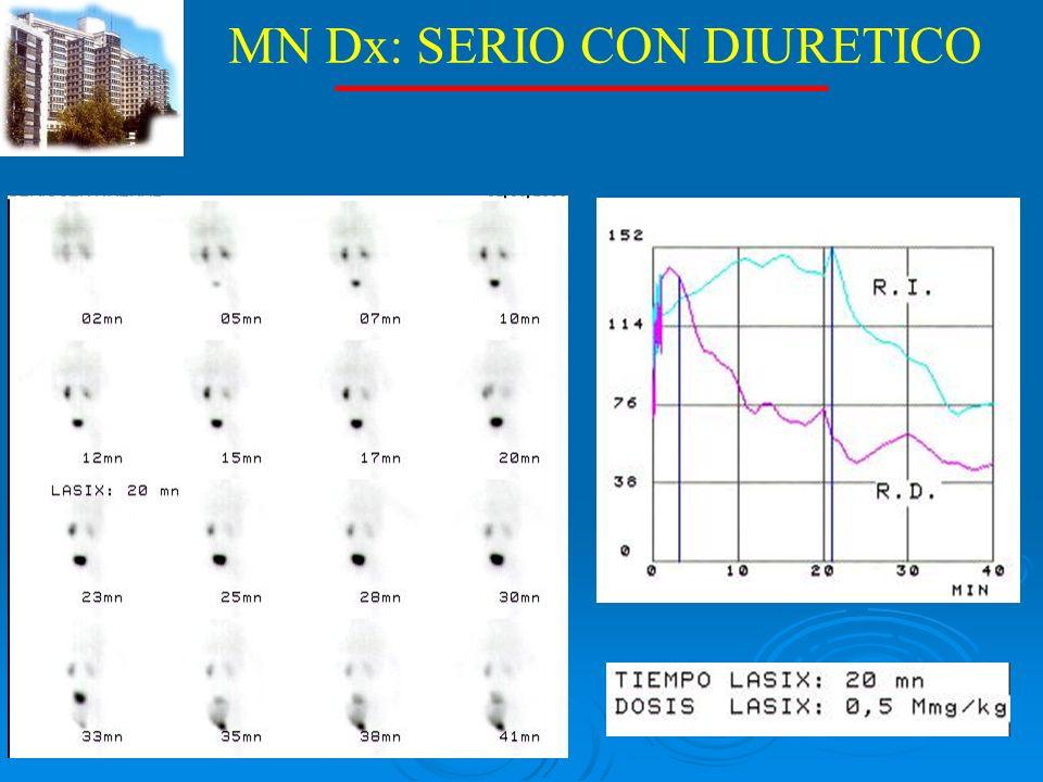 MN Dx: SERIO CON DIURETICO