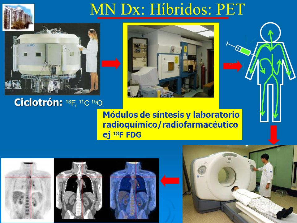 MN Dx: Híbridos: PET Ciclotrón: 18F, 11C 15O Escáner P.E.T.