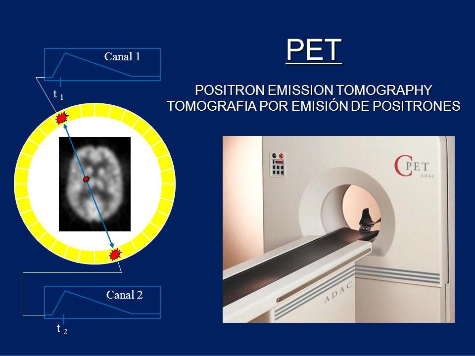 PET POSITRON EMISSION TOMOGRAPHY TOMOGRAFIA POR EMISIÓN DE POSITRONES