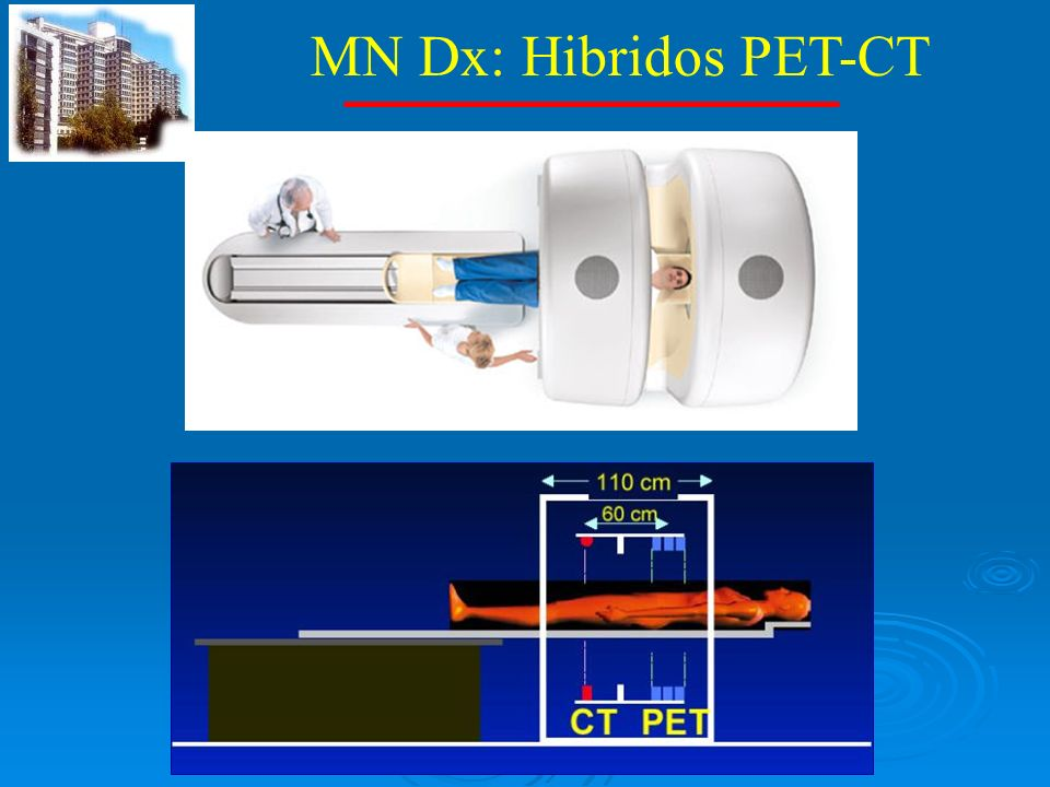 MN Dx: Hibridos PET-CT