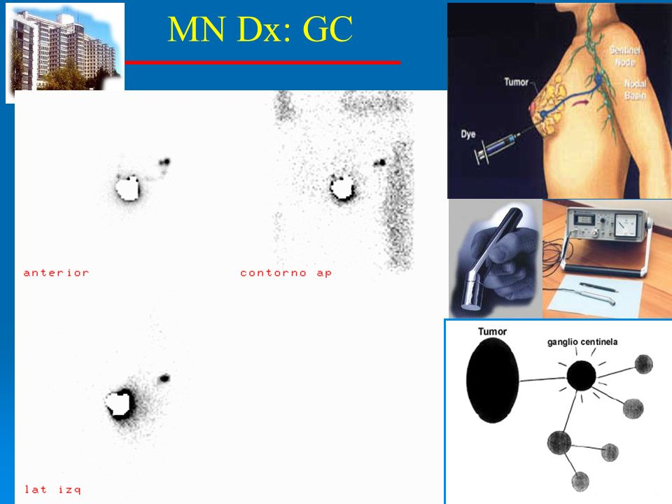 MN Dx: GC